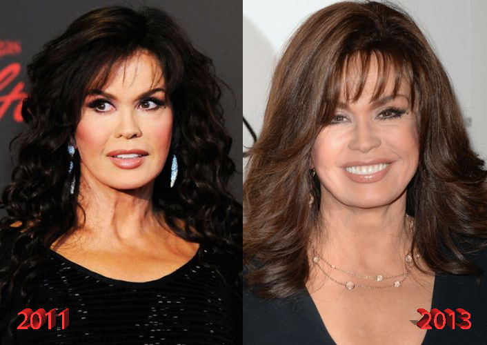 Marie Osmond Plastic Surgery Is It Really Just Botox