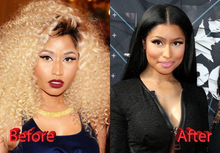 Nicki Minaj Plastic Surgery Fact Or Not