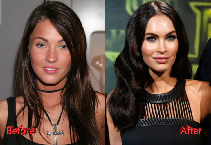 Megan Fox Plastic Surgery Before And After Plastic