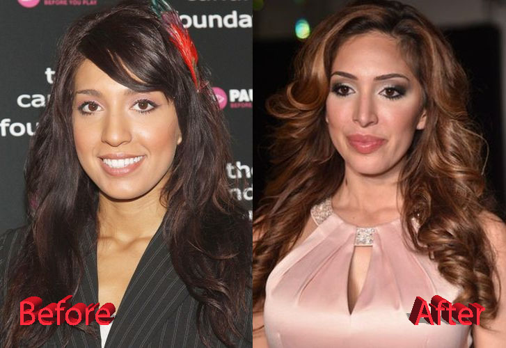 Image result for farrah abraham before and after,lip