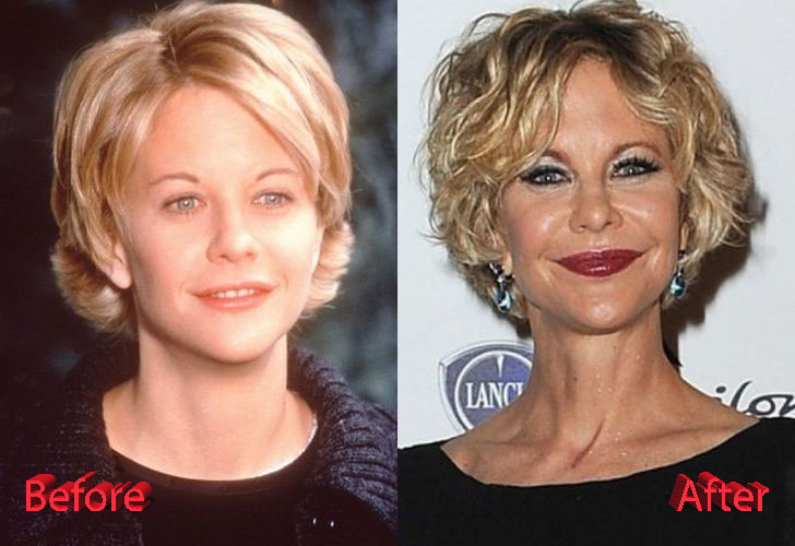 Meg Ryan Plastic Surgery Why Oh Why Plastic Surgery Mistakes