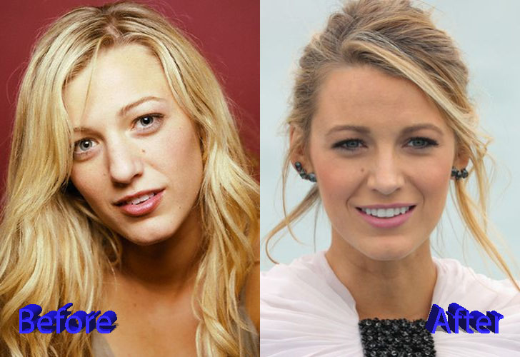 Blake Lively Before and After Nose Job Surgery – Plastic ... Blake Lively Nose