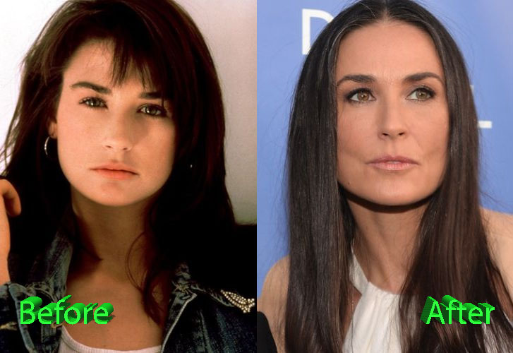 Demi Moore Plastic Surgery Gone Too Far