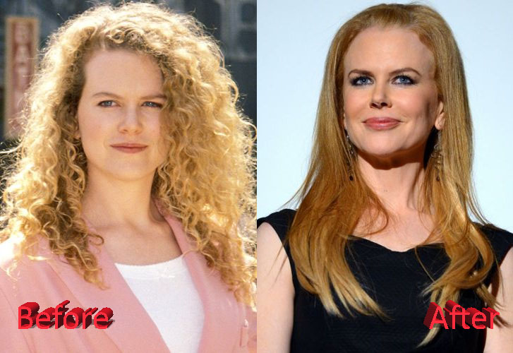 Cosmetic Surgery Disasters Celebrities - Images All ...