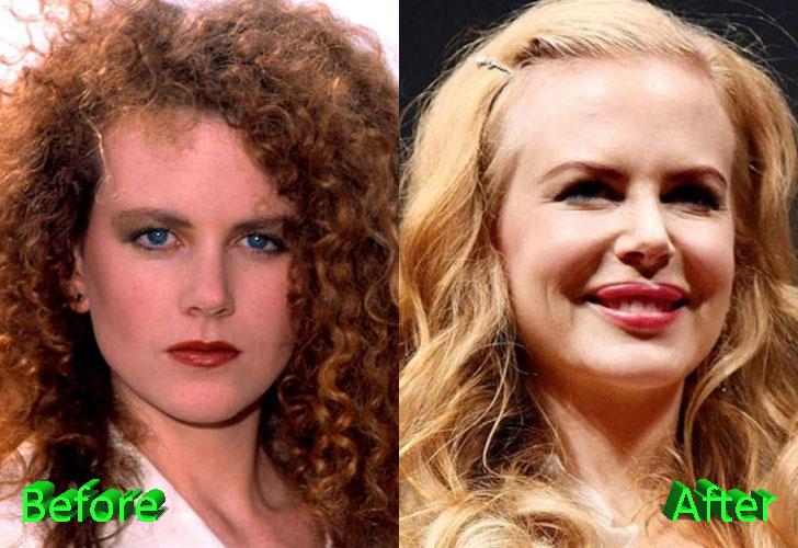 Nicole Kidman Plastic Surgery Pretty Big Changes