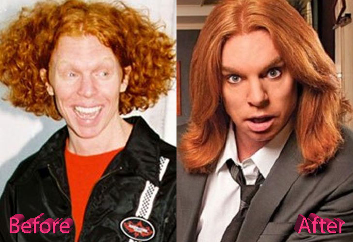 Carrot Top Plastic Surgery Not So Funny Anymore