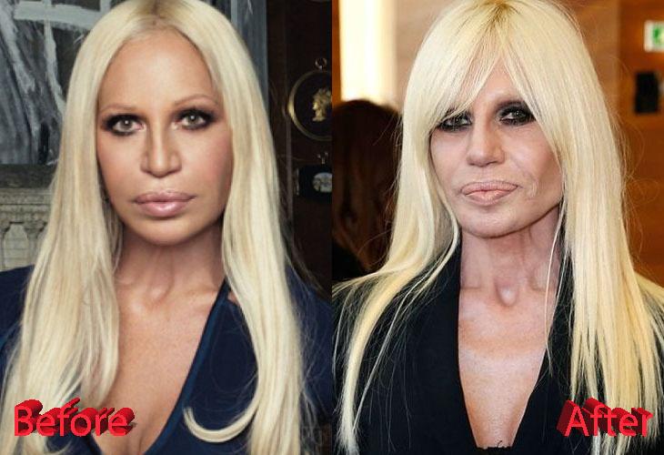 donatella versace plastic surgery not fashionable at all