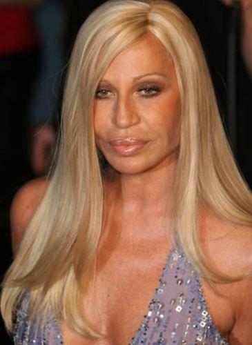 Donatella-Versace-Plastic-Surgery-Contro