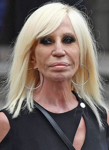 Donatella Versace Plastic Surgery: Not Fashionable At All гвен стефани