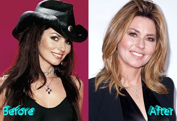 Did Shania Twain Get Fillers Breast Implants Before