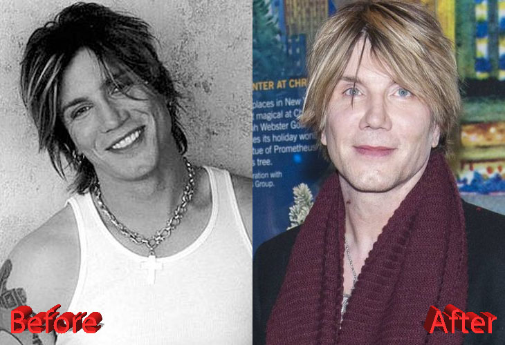 John Rzeznik Before And After Cosmetic Surgery