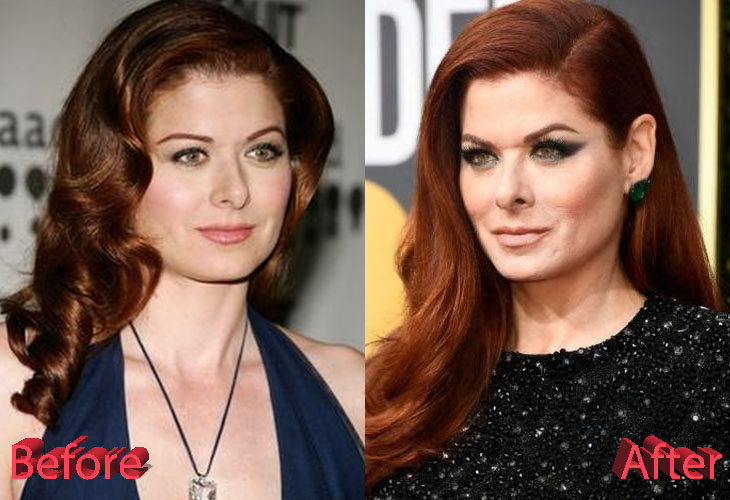 Debra Messing Plastic Surgery: