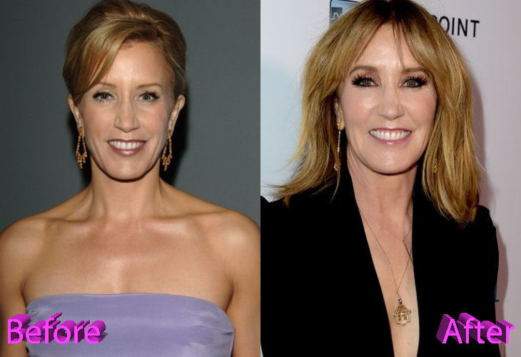 Felicity Huffman Plastic Surgery Was It A Good Idea Though