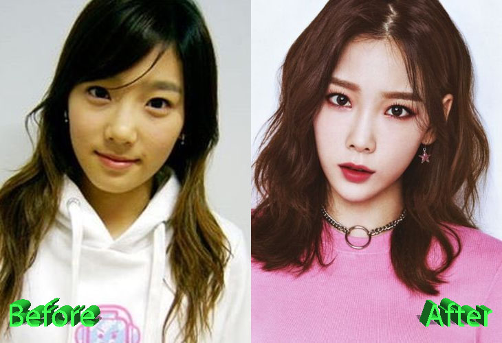 Taeyeon Plastic Surgery Rumors Sparked Off By Recent Snapshots